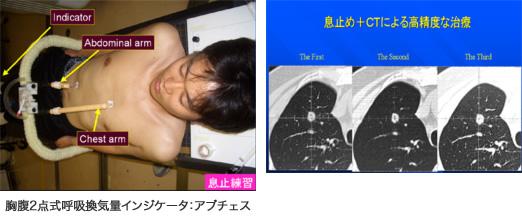 体幹部固定具の装着と息止め練習