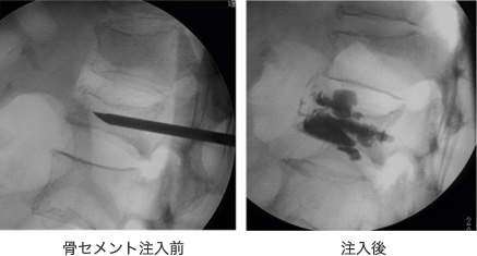 第1腰椎の経皮的椎体形成術